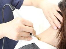 高知市えぐち鍼灸整骨院:微弱電流治療(アキュスコープ)の写真