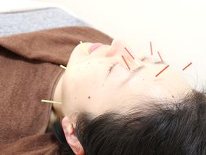 高知市えぐち鍼灸整骨院での美容鍼