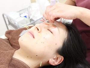 高知市えぐち鍼灸整骨院のハリウッド式美容鍼